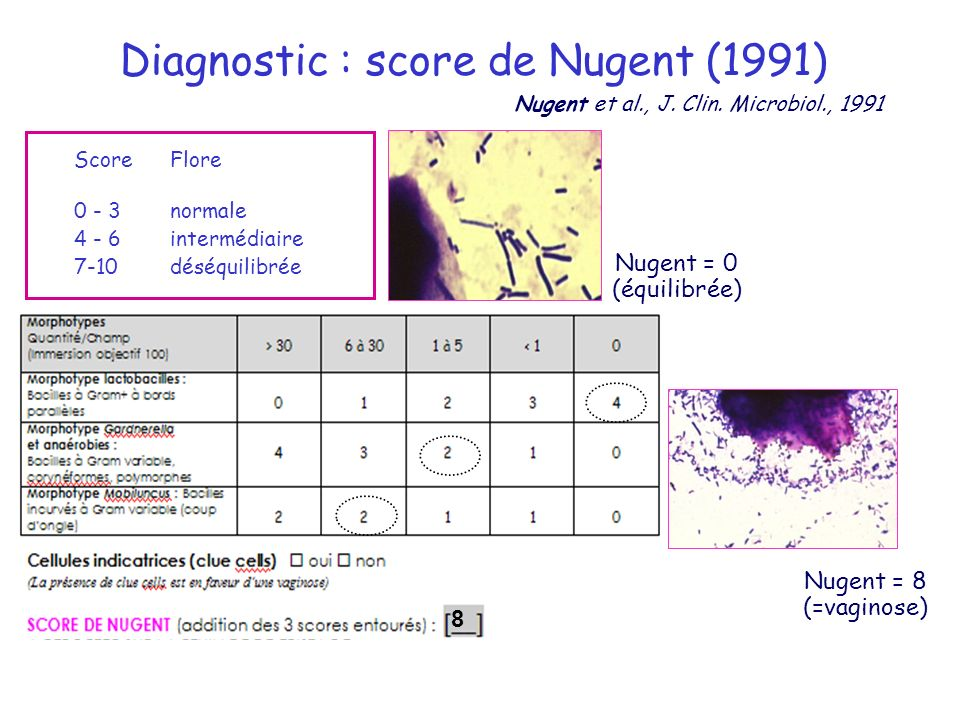 Diagnostic : score de Nugent (1991)
