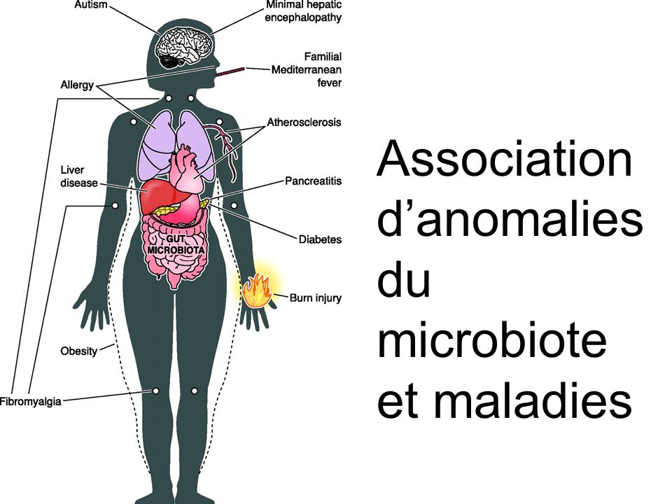 Association d'anomalies du microbiote et maladies