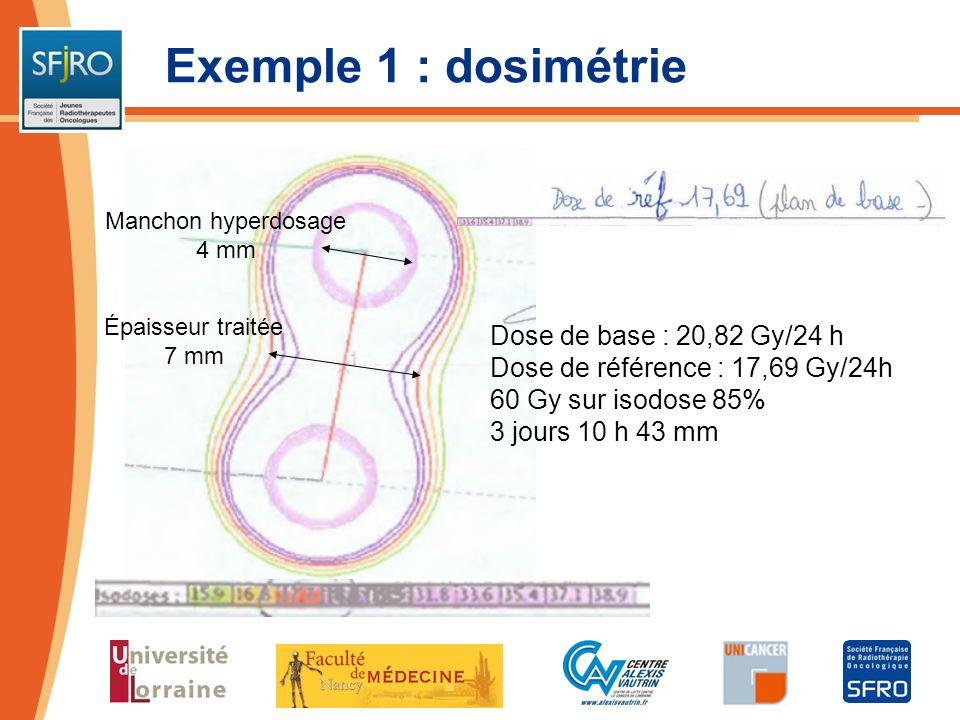 Exemple 1 : dosimétrie Dose de base : 20,82 Gy/24 h