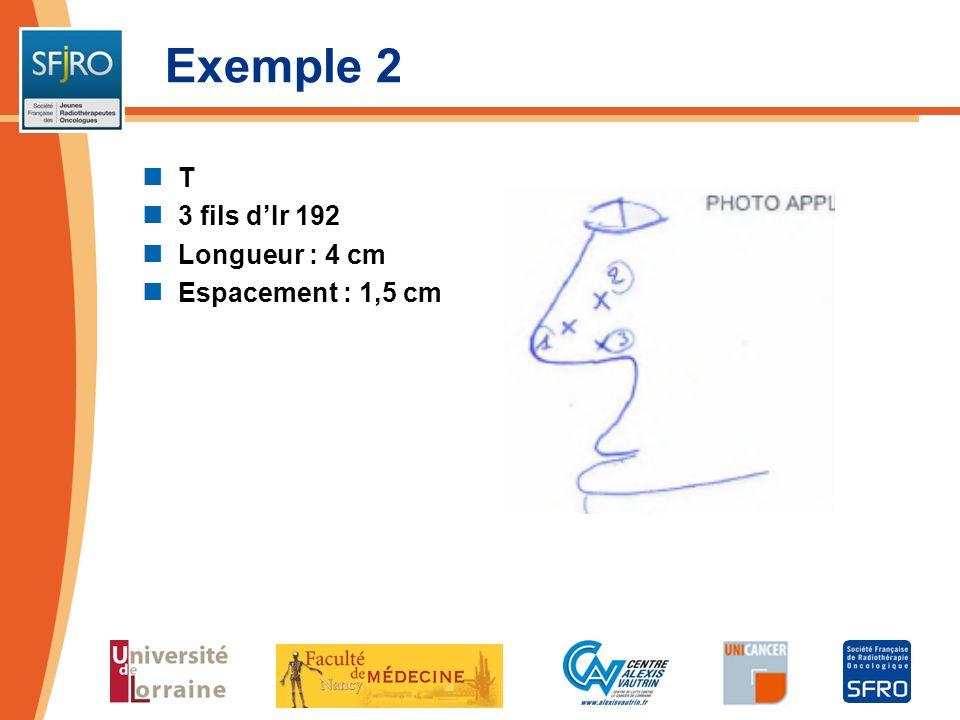 Exemple 2 T 3 fils d'Ir 192 Longueur : 4 cm Espacement : 1,5 cm