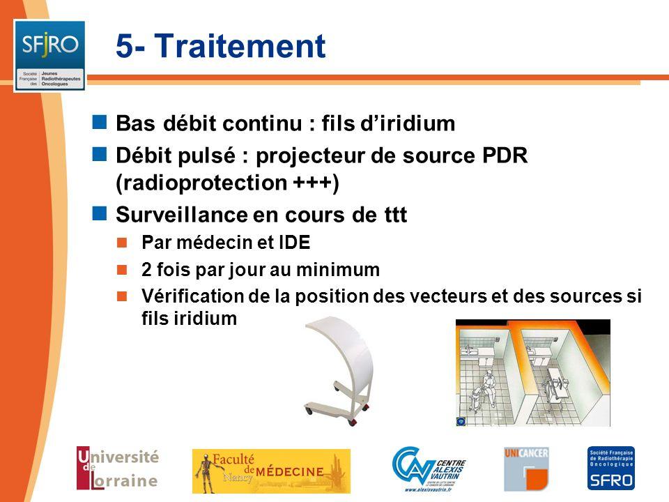 5- Traitement Bas débit continu : fils d'iridium