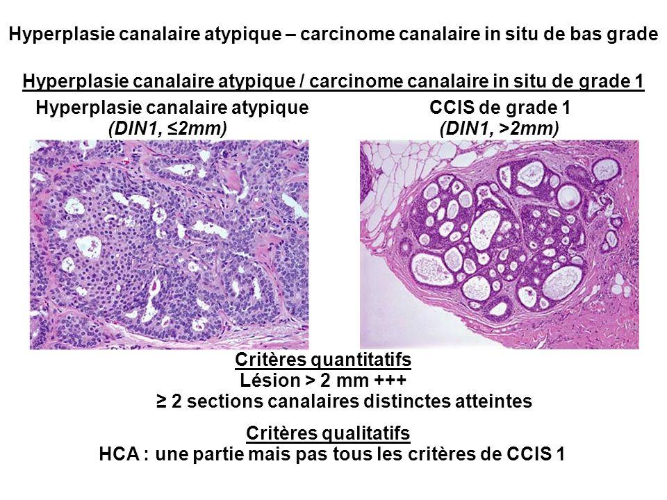 Hyperplasie canalaire atypique – carcinome canalaire in situ de bas grade