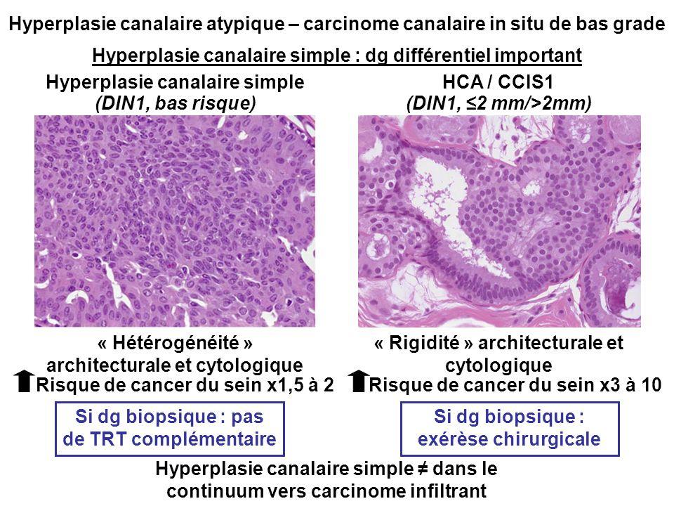 Hyperplasie canalaire simple : dg différentiel important