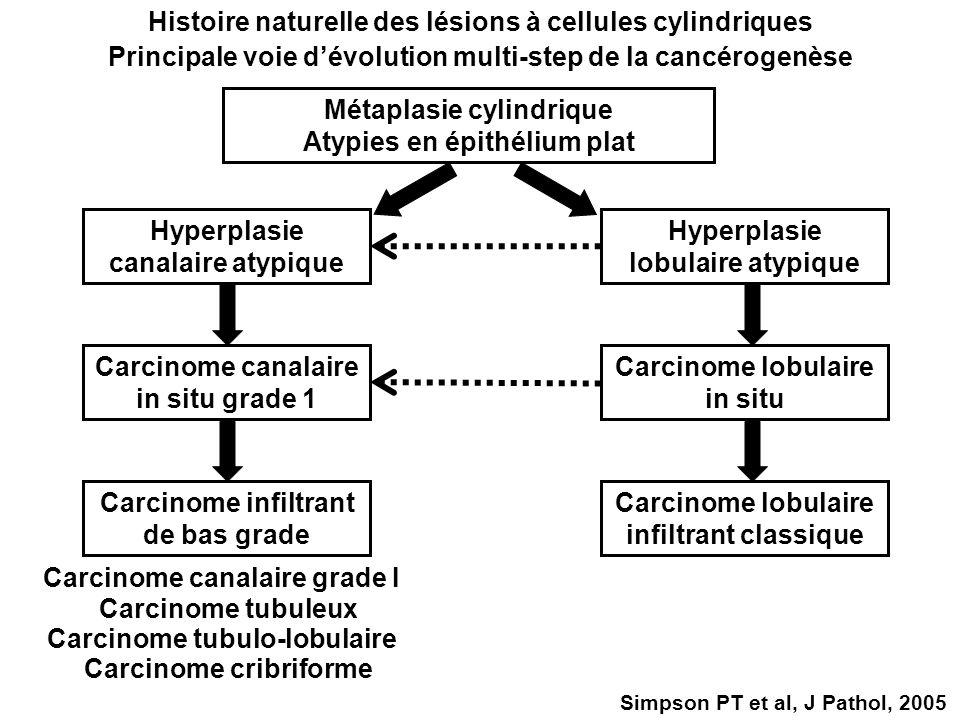 Histoire naturelle des lésions à cellules cylindriques