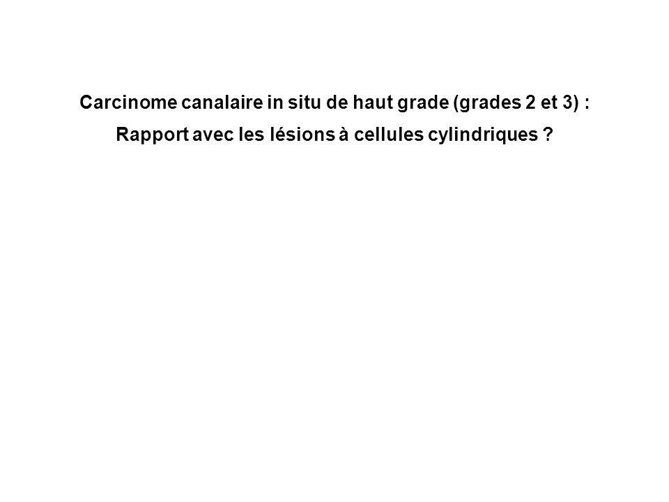 Carcinome canalaire in situ de haut grade (grades 2 et 3) :