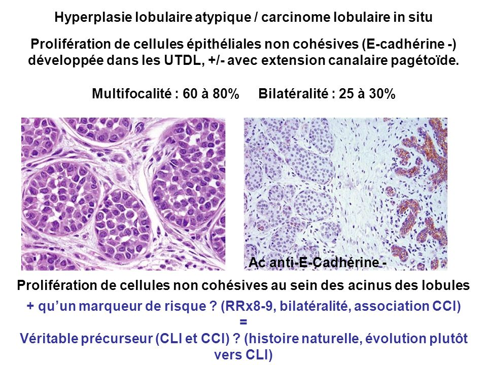 Hyperplasie lobulaire atypique / carcinome lobulaire in situ