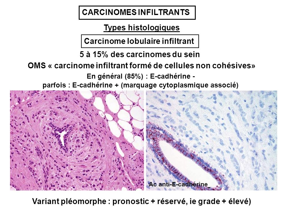 CARCINOMES INFILTRANTS