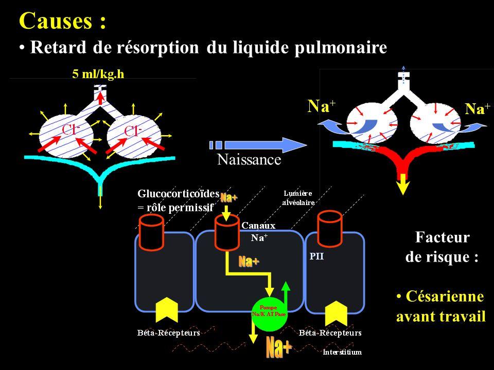 Causes : Retard de résorption du liquide pulmonaire Naissance Facteur