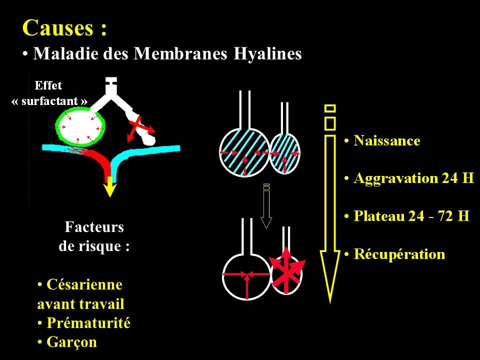 Causes : Maladie des Membranes Hyalines Facteurs de risque :