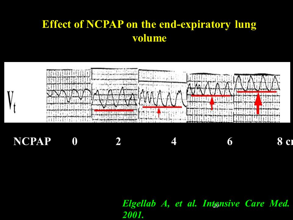 Effect of NCPAP on the end-expiratory lung volume