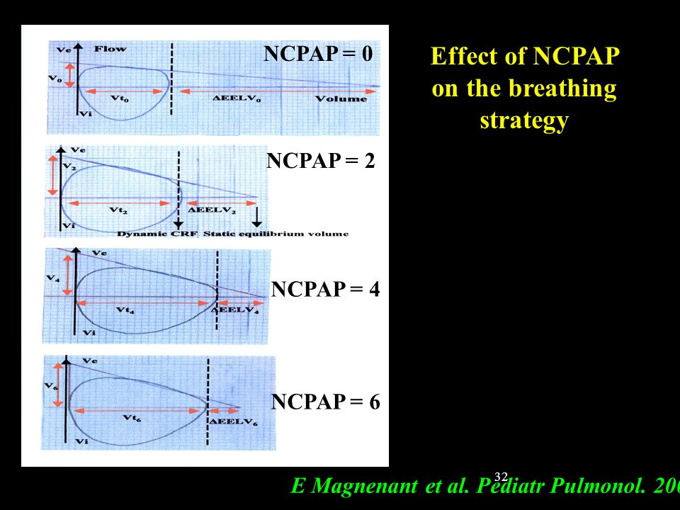 on the breathing strategy