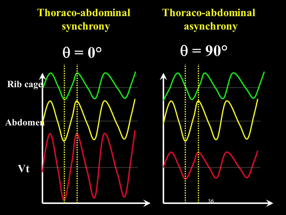  = 90°  = 0° Thoraco-abdominal synchrony Thoraco-abdominal