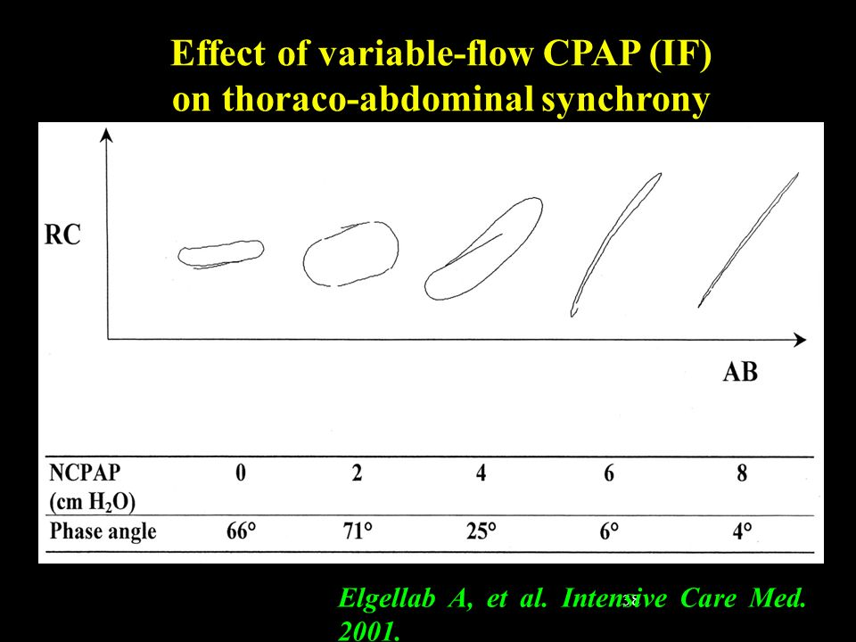 Effect of variable-flow CPAP (IF) on thoraco-abdominal synchrony