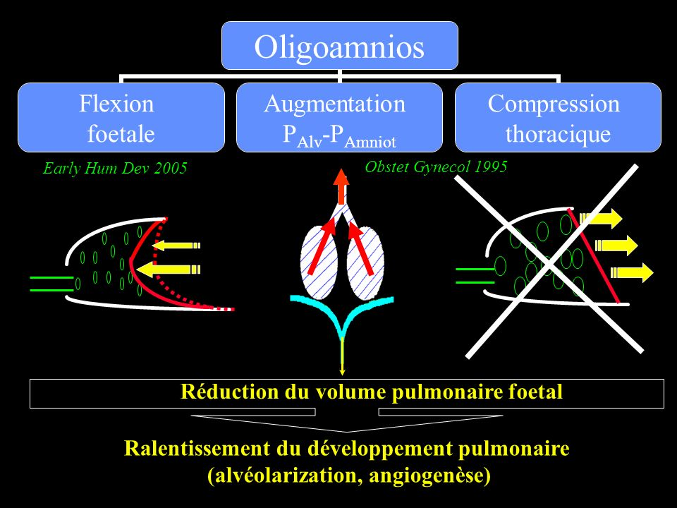 Réduction du volume pulmonaire foetal