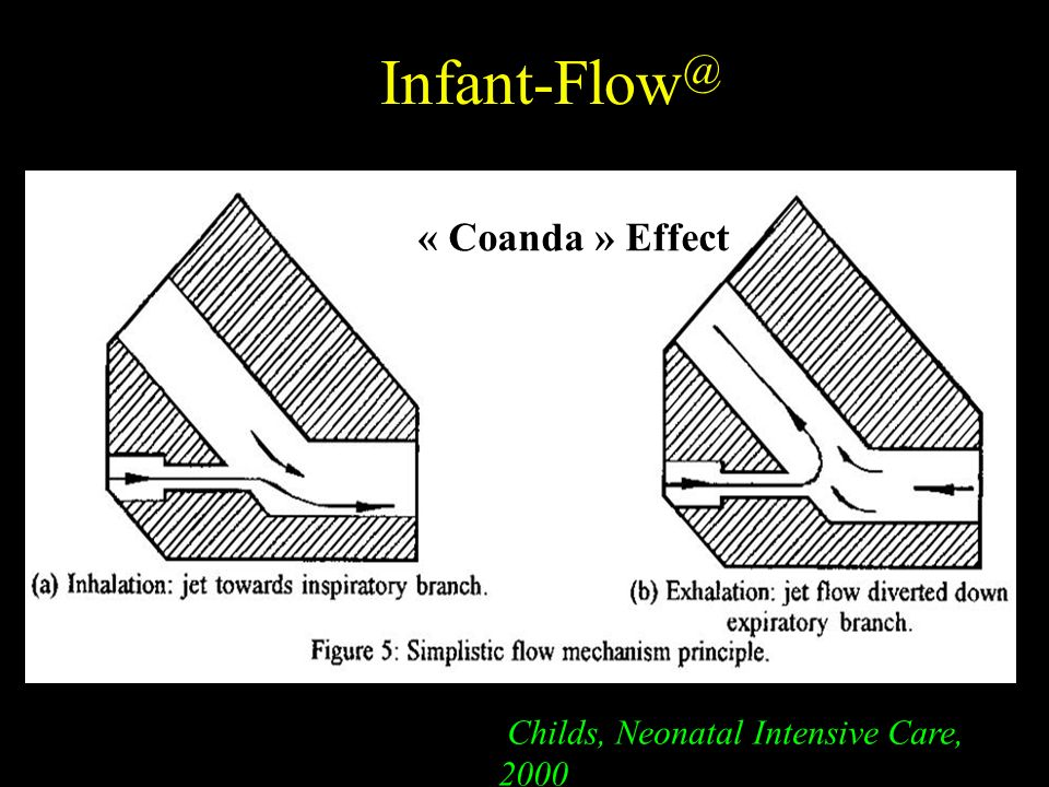 Infant-Flow@ « Coanda » Effect Childs, Neonatal Intensive Care, 2000