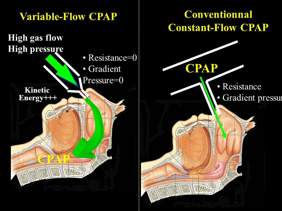 CPAP CPAP Conventionnal Variable-Flow CPAP Constant-Flow CPAP