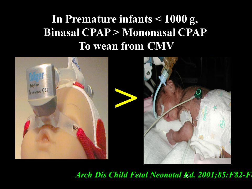 In Premature infants < 1000 g, Binasal CPAP > Mononasal CPAP