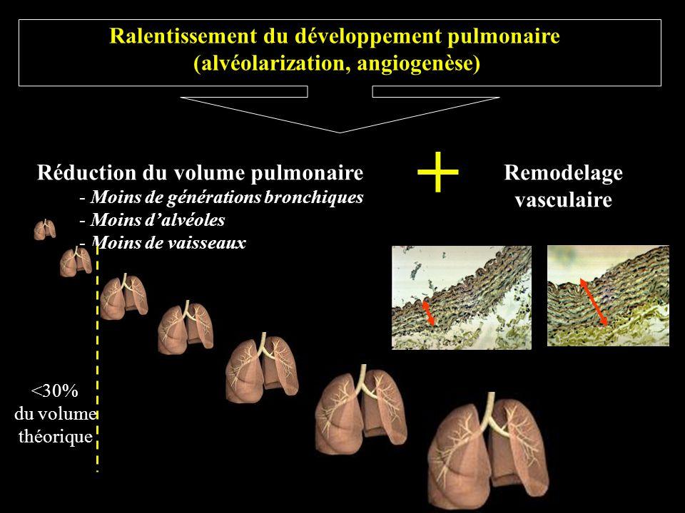 + Ralentissement du développement pulmonaire