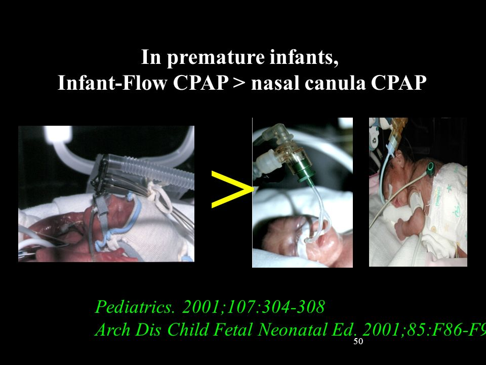 Infant-Flow CPAP > nasal canula CPAP