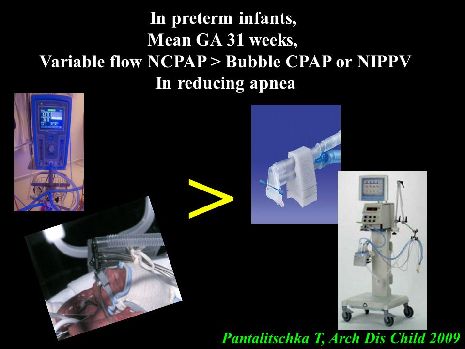 Variable flow NCPAP > Bubble CPAP or NIPPV
