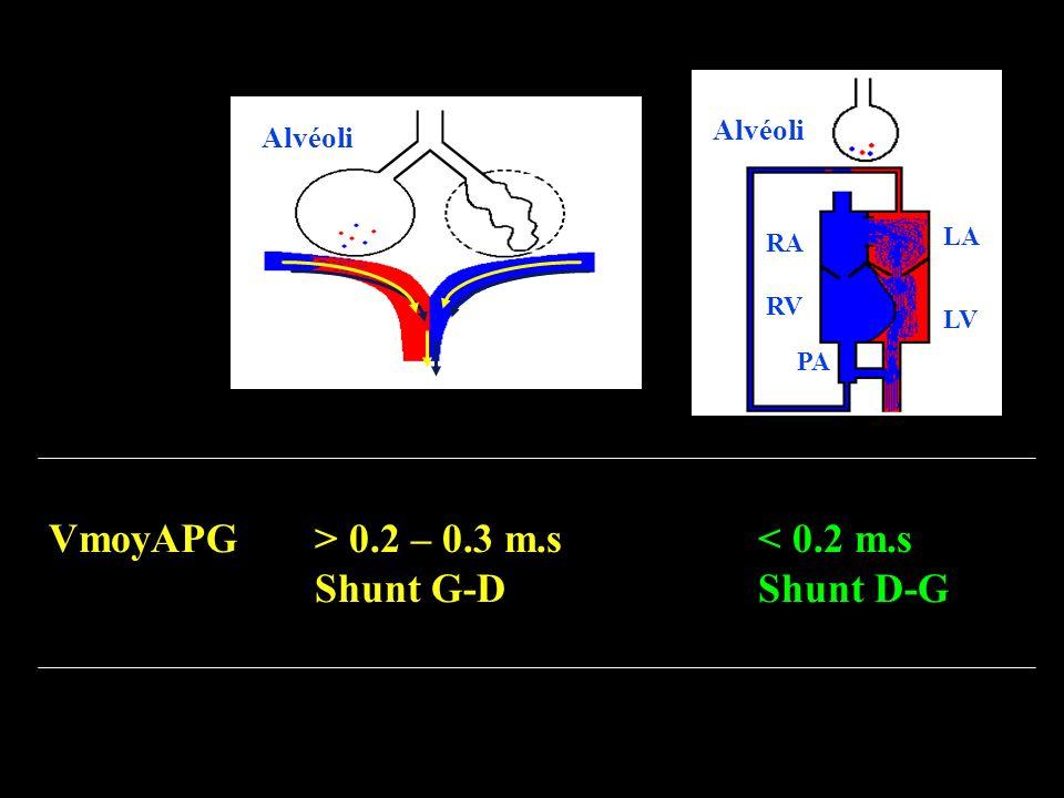 VmoyAPG > 0.2 – 0.3 m.s < 0.2 m.s Shunt G-D Shunt D-G