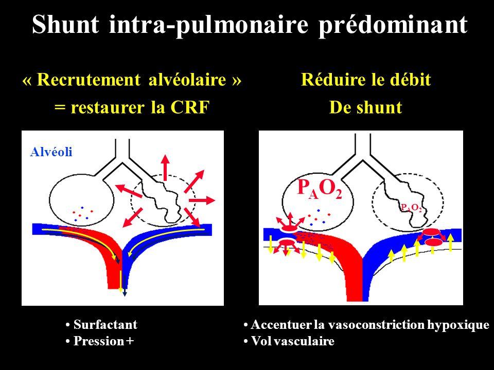 Shunt intra-pulmonaire prédominant « Recrutement alvéolaire »