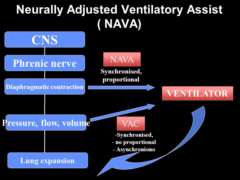 Neurally Adjusted Ventilatory Assist ( NAVA)