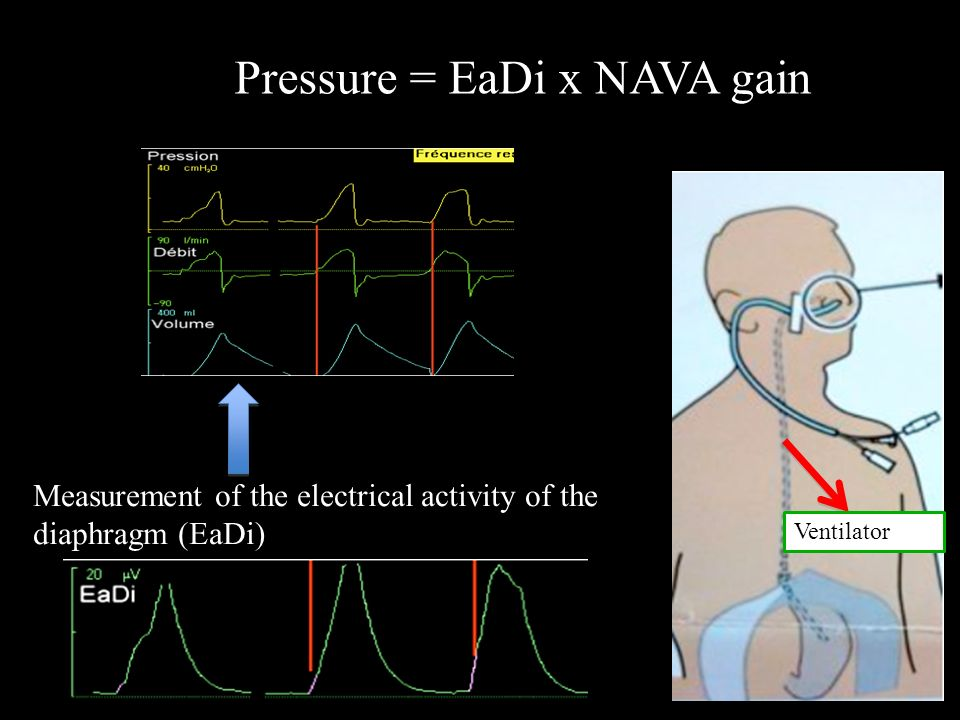 Pressure = EaDi x NAVA gain