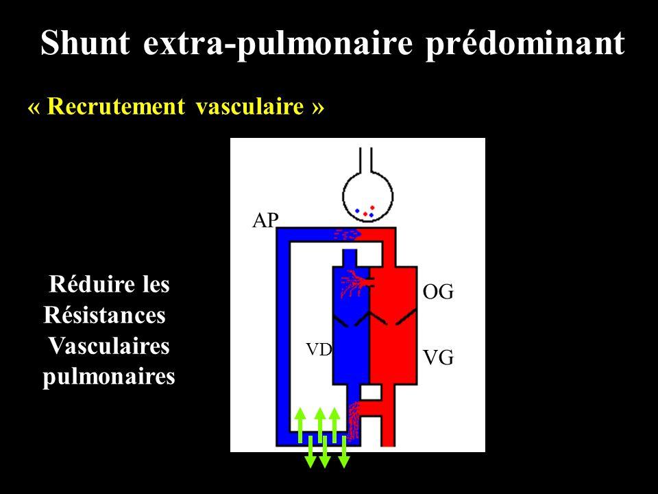 Shunt extra-pulmonaire prédominant « Recrutement vasculaire »