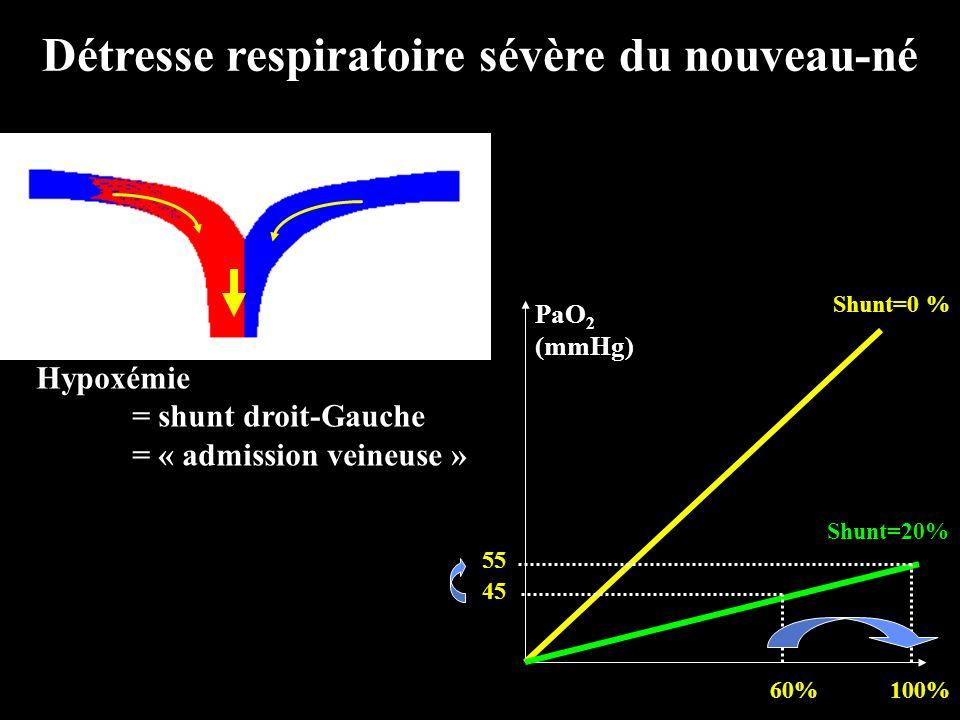 Détresse respiratoire sévère du nouveau-né