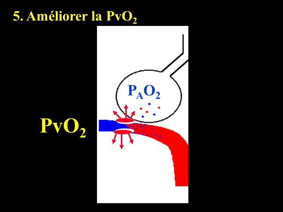 5. Améliorer la PvO2 PAO2 PvO2