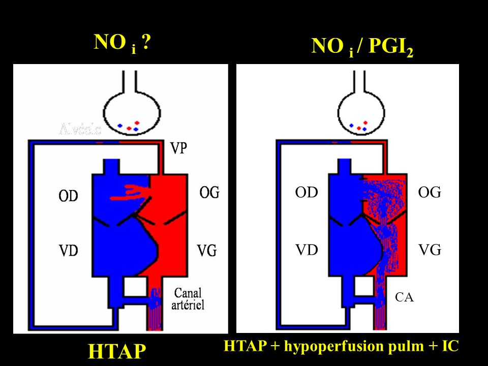 HTAP + hypoperfusion pulm + IC