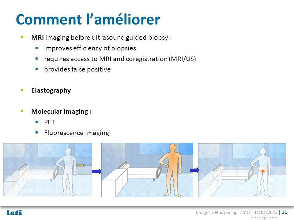 Comment l'améliorer MRI imaging before ultrasound guided biopsy :