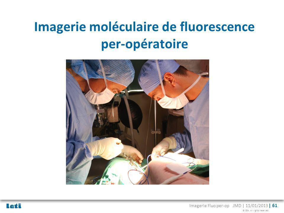 Imagerie moléculaire de fluorescence per-opératoire