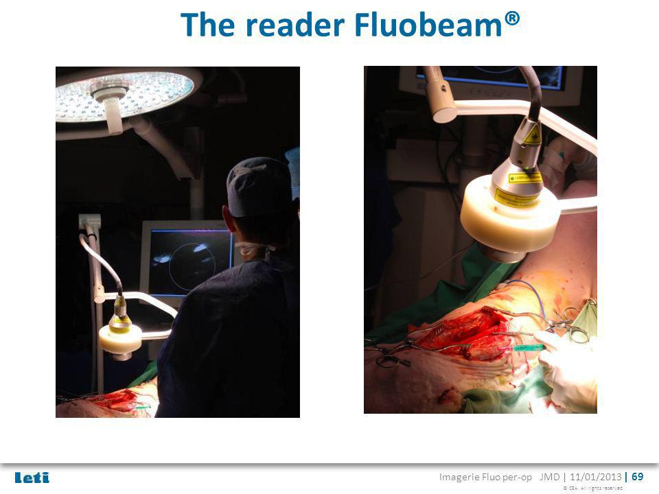 The reader Fluobeam®