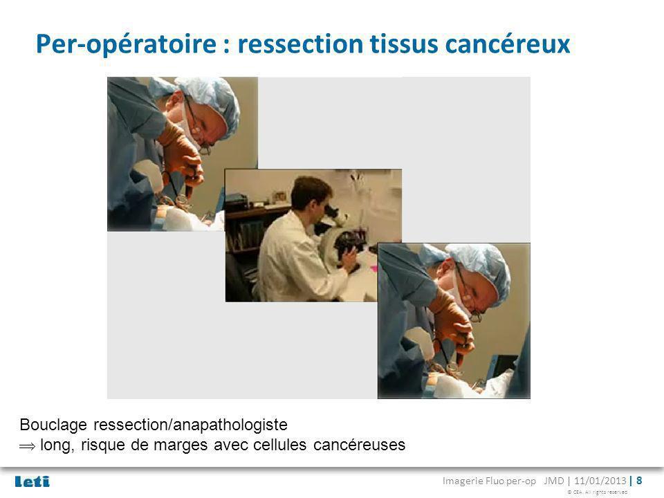 Per-opératoire : ressection tissus cancéreux