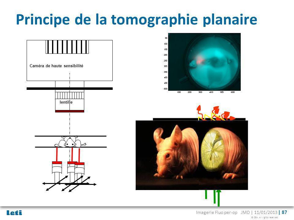 Principe de la tomographie planaire