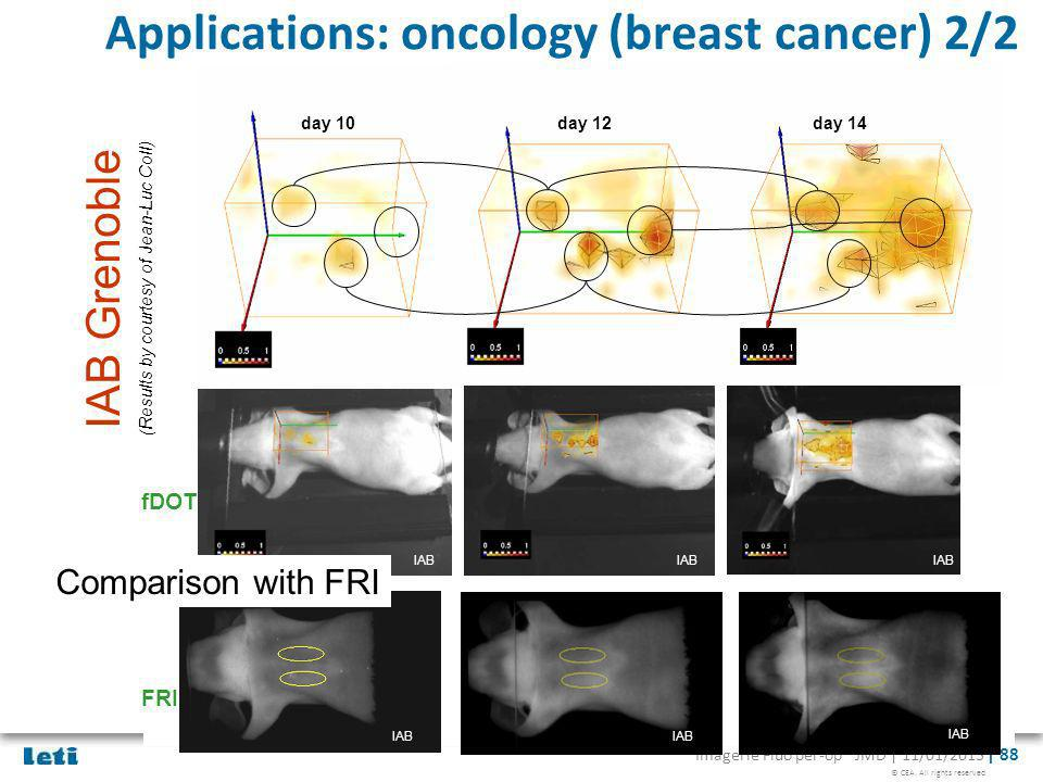 Applications: oncology (breast cancer) 2/2