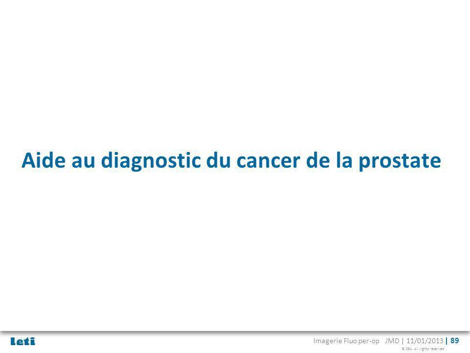 Aide au diagnostic du cancer de la prostate