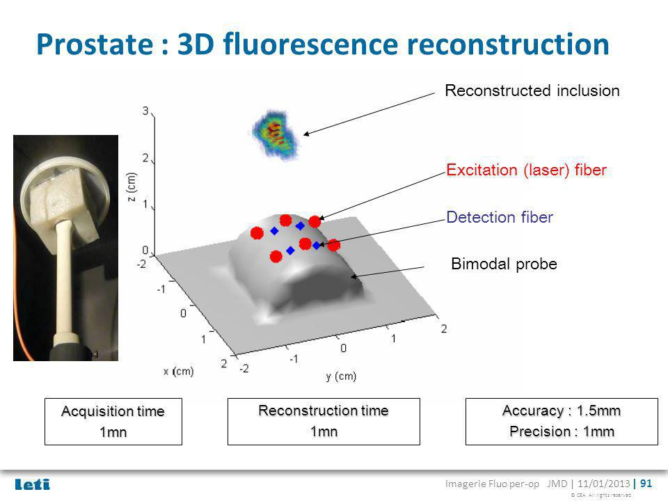 Prostate : 3D fluorescence reconstruction