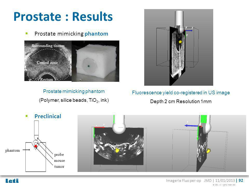 Prostate : Results Prostate mimicking phantom Preclinical