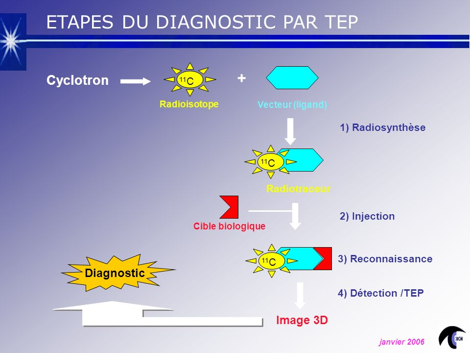 ETAPES DU DIAGNOSTIC PAR TEP