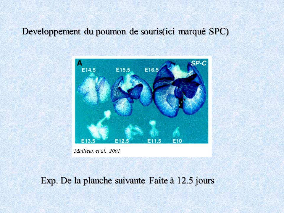 Developpement du poumon de souris(ici marqué SPC)