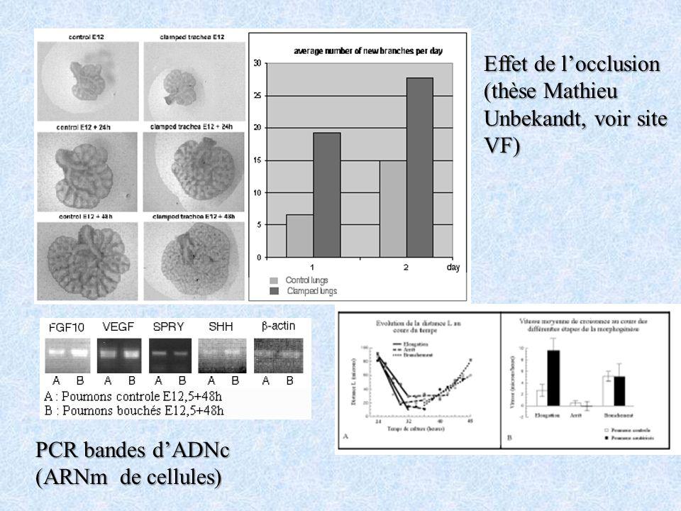 Effet de l'occlusion (thèse Mathieu Unbekandt, voir site VF) PCR bandes d'ADNc (ARNm de cellules)