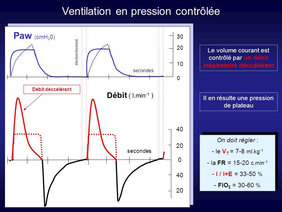 Ventilation en pression contrôlée