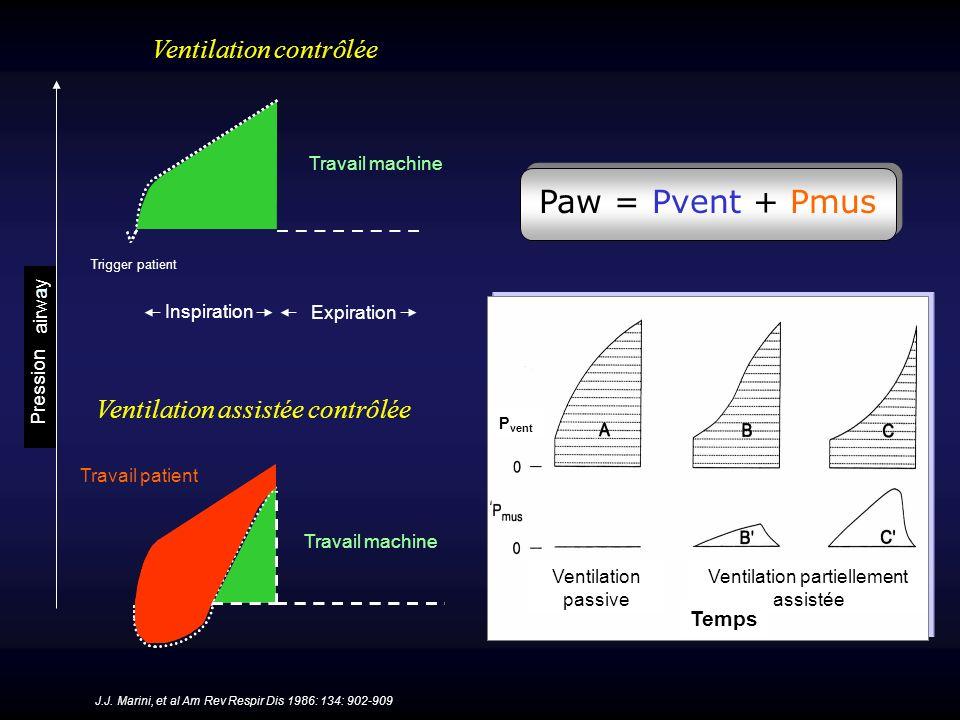Paw = Pvent + Pmus Ventilation contrôlée