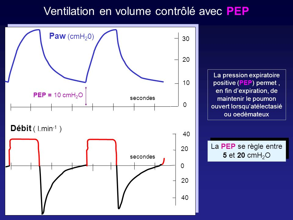 Ventilation en volume contrôlé avec PEP