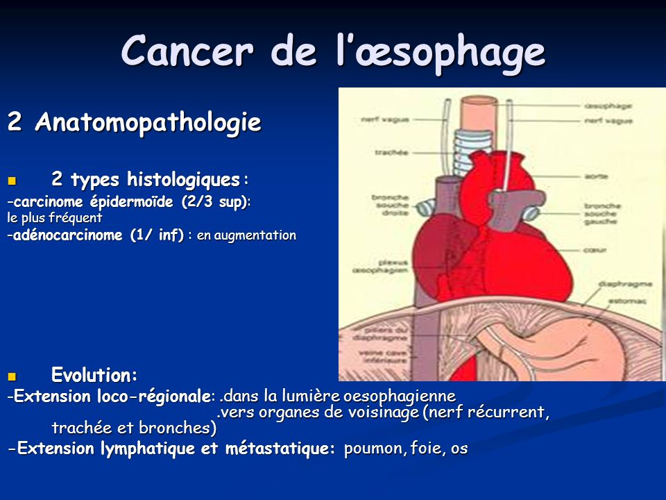 Cancer de l'œsophage 2 Anatomopathologie 2 types histologiques :