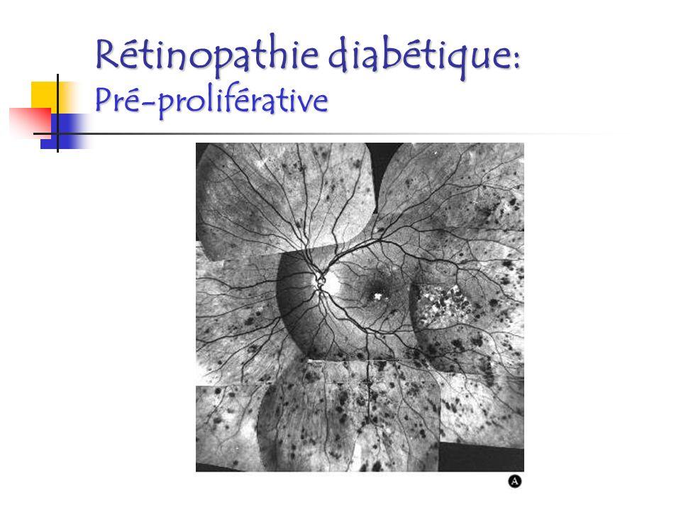 Rétinopathie diabétique: Pré-proliférative