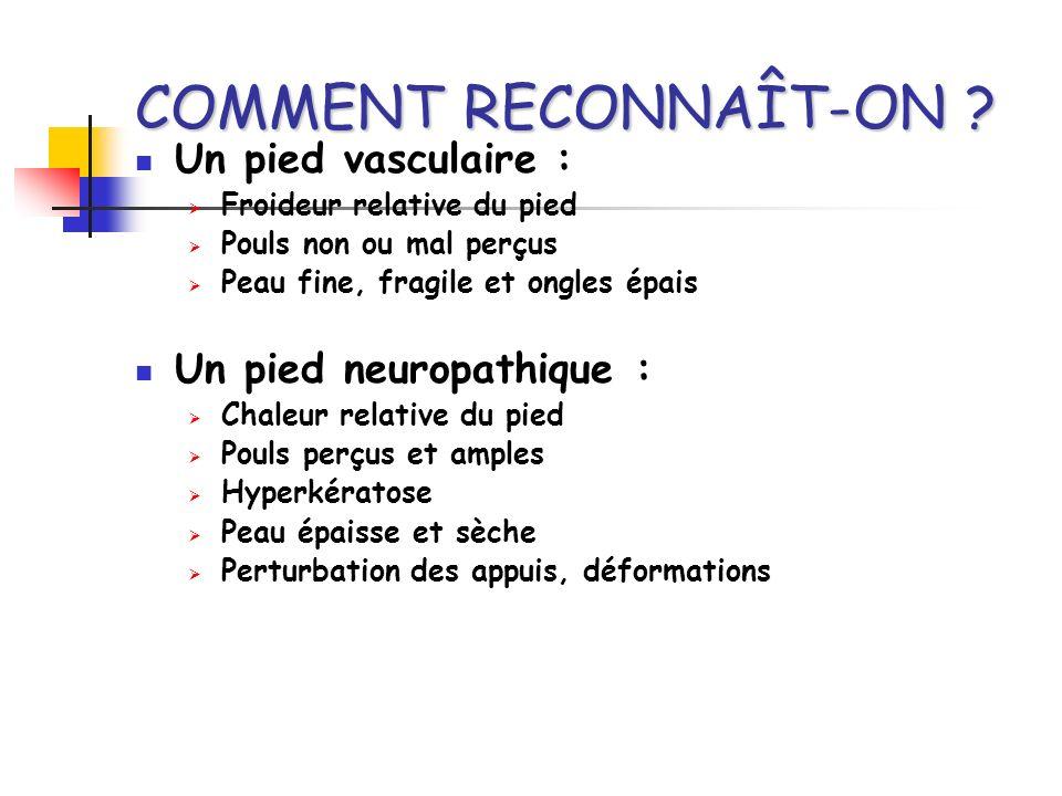 COMMENT RECONNAÎT-ON Un pied vasculaire : Un pied neuropathique :